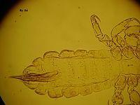 Pediculus humanus macho.JPG